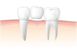 歯を失った時の基本治療 ブリッジのイメージ