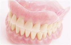 当院で扱っている入れ歯の種類のイメージ