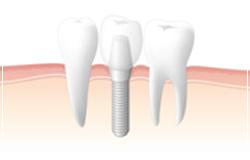 第2の永久歯 インプラント